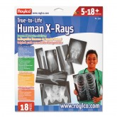 True-to-Life Human X-Rays